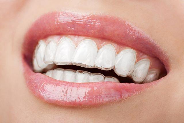 Teethe straightening
