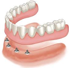 Multi Dental Implants for loose denture