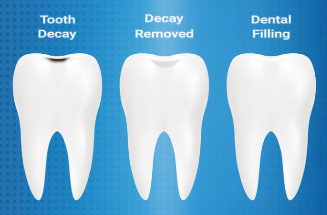 dental teeth decay and fillings