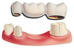 Dental bridge to replace loose denture